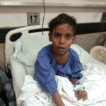 Arbaj After Surgery